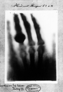 World's first X ray